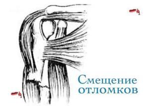 Переломы диафиза плечевой кости