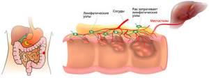 Рак прямой кишки - симптомы и диагностика