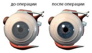 Инородные тела глубоких слоев роговицы