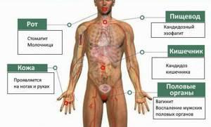 Кандидасепсис - симптомы и течение